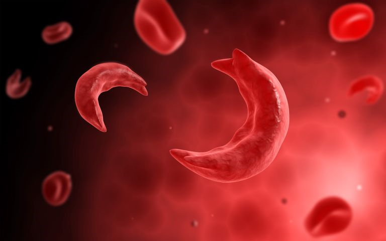 Pfizer and Sangamo Dose First Participant in Phase 3 Study Evaluating Hemophilia A Gene Therapy Treatment
